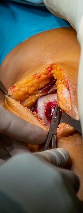 Autologe Chondrozyten Transplantation – Winglet Education GmbH